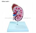 P-1166 Kidney model