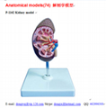 P-1162 Kidney model