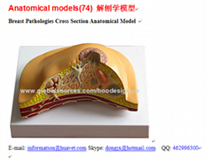 P-1364 Breast Pathologies Cross Section Anatomical Model