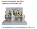 P-1319 Four-Stage Osteoarthritis Knee