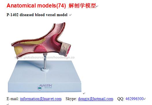 P-1402 diseased blood vessel model
