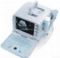 Bestman Ultrasound Scanner BEU-8350T