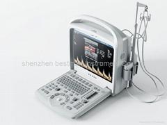 Compact Color Doppler Diagnostic Ultasound System