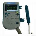 bidirection BV-520T Color Doppler Laptop Vascular Doppler