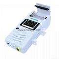 new type bidirection BV-520P Color Doppler Laptop Vascular Doppler 2