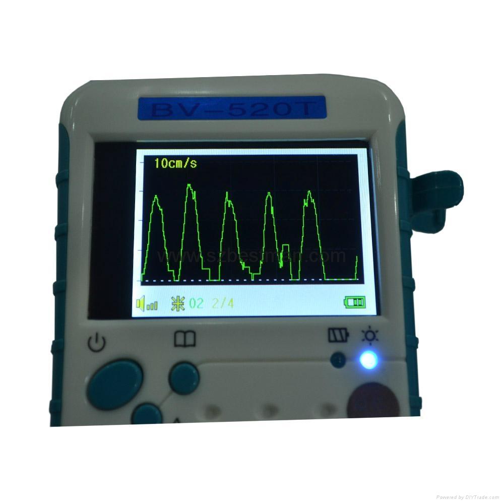 BSM CE Pocket Vascular Doppler BF-520TFT Home Use   9