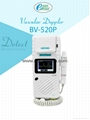 new type bidirection BV-520P Color Doppler Laptop Vascular Doppler with printer