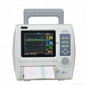 Fetal heart rate monitor with CE and good price 1