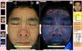 Magic Mirror Facial Skin Analysis