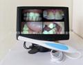 口腔内视镜(适用口腔护理促销使用)