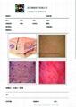 皮肤检测系统(整形美容标准版) 4