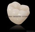 Dental glass ceramic crown