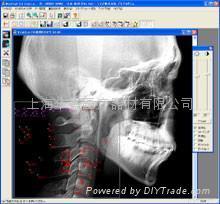 頭影測量分析正畸軟件WinCeph 8.0