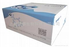 人结缔组织生长因子试剂盒