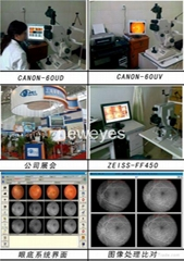 digital conversion fundus camera (Canon series)