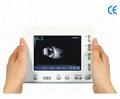 TW-2100 Ophthalmology Palm A/B Scan