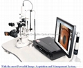 Electric-Focus Digital Slit Lamp