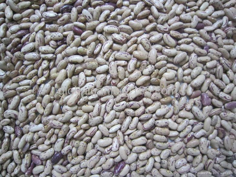 light speckled Kidney beans 3